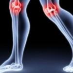 Krioterapia a reumatyzm
